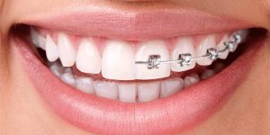 Konya Ortodonti Tedavisi