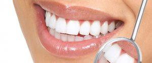 konya diş beyazlatma tedavisi