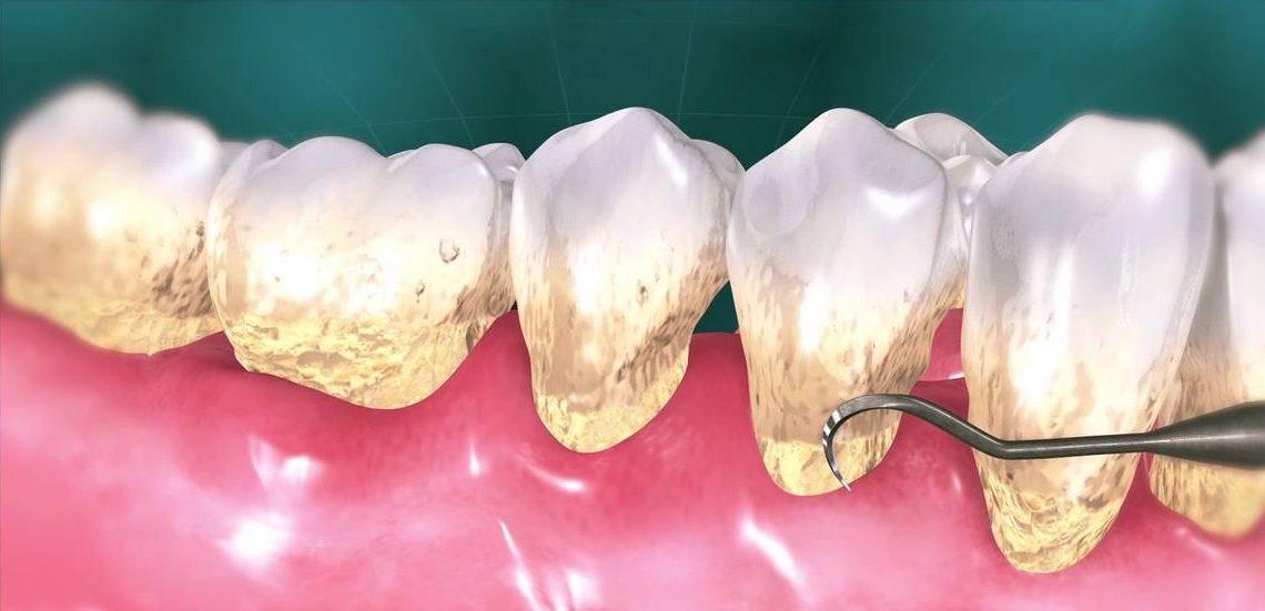 Diş Taşı Konya