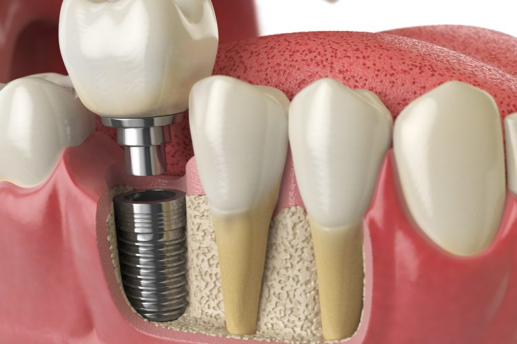 Konya implant