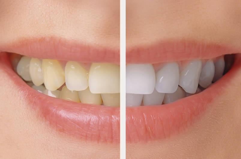 diş beyazlatma konya