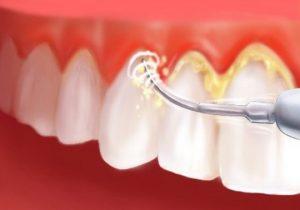 Konya Diş Hekimliği Uygulamaları