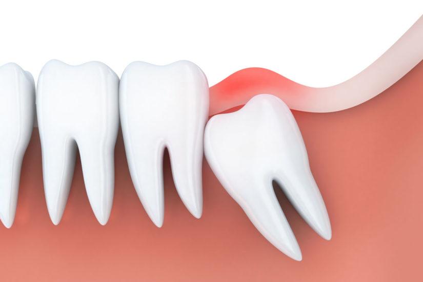 Konya yirmilik diş çekimi